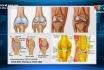 Bệnh khớp và cách phòng tránh