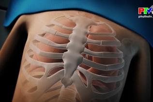 Phẫu thuật lõm lồng ngực bẩm sinh